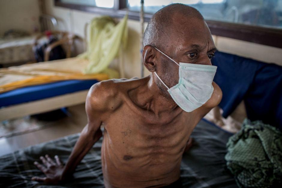 человек туберкулезом фото больной