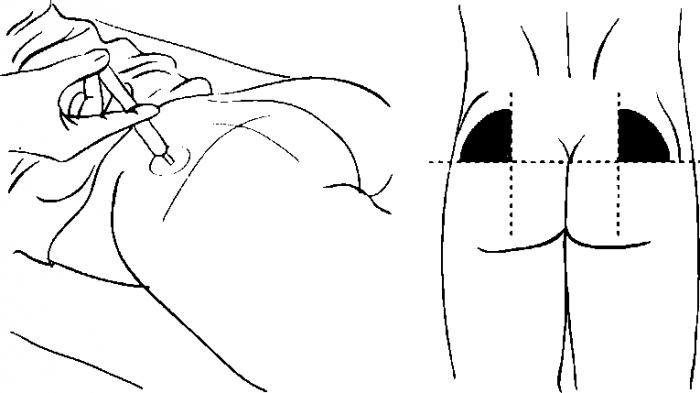Схема, куда правильно делать укол в ягодицу