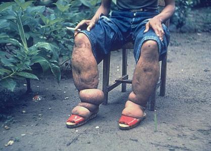 Лимфедема (Cлоновая болезнь)